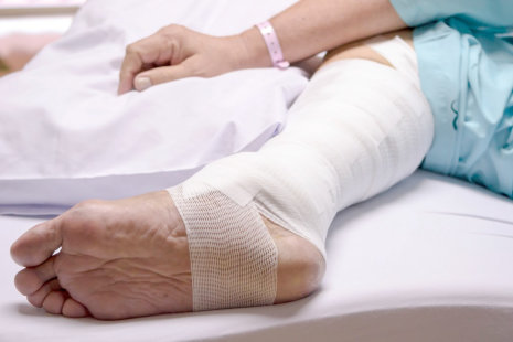 Wound Vac Care: Using Vacuum to Heal a Wound