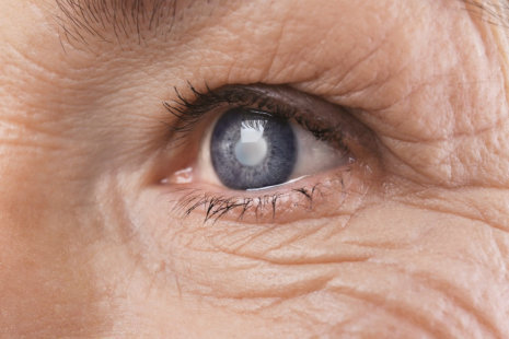 How Seniors Can Prevent Cataracts